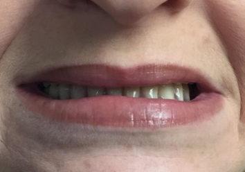 Шатается зубной протез: причины, способы решения проблемы, советы