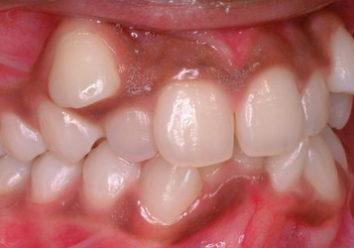 Зуб вырос в десне: так ли это страшно?
