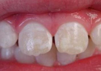 Почему возникают белые пятна на молочных зубах у ребенка?