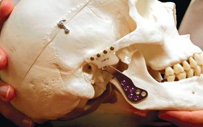 хрустит челюсть при открывании рта и жевании