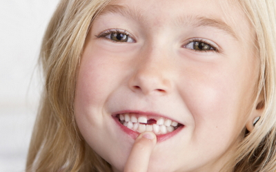 молочные зубы у ребенка выпадают