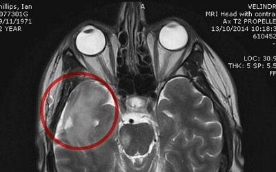 мрт головного мозга и зубные импланты
