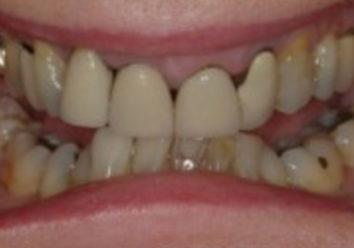 Почему не смыкаются зубы после протезирования?