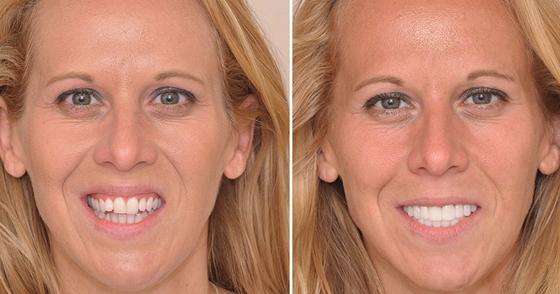 Как в современной стоматологии исправляют неправильный прикус у взрослых?