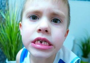 Нужно ли что-то делать, если ребенок проглотил зуб?