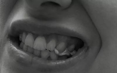 зубы реагируют только на сладкое