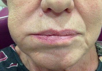 Болит зуб и опухла щека: что это может быть?
