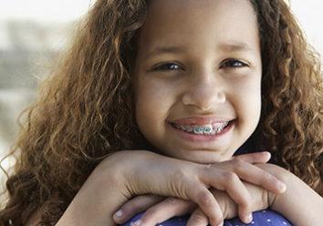 Брекет-системы для детей: что о них необходимо знать родителям?