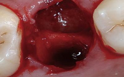 кровяной сгусток после удаления зуба фото