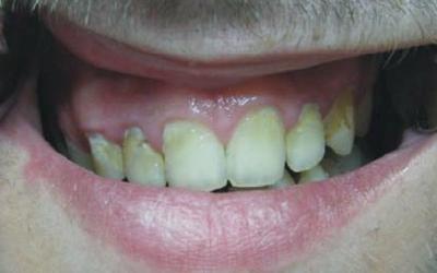 Чем опасен и как лечится пришеечный кариес зубов?