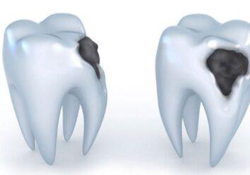 Как распознать декальцинацию зубной эмали?