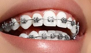 Что такое брекеты за зубами?