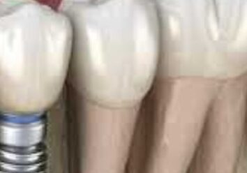 Что такое зубной имплант?